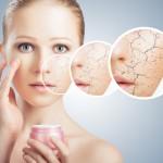 Методы лечения псориаза для наружного применения