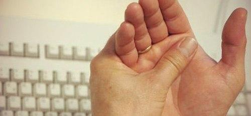 arthropathy pri psoriase 3