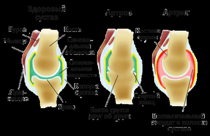суставы при артрите и артрозе