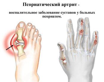 psoriaticheskij-artrit-350x278